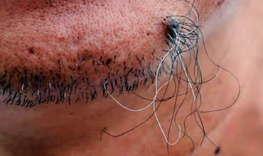 Hairs in moles
