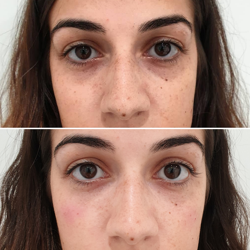 Tear Trough Filler Treatment Before and After
