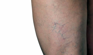 Facial, spider and leg veins